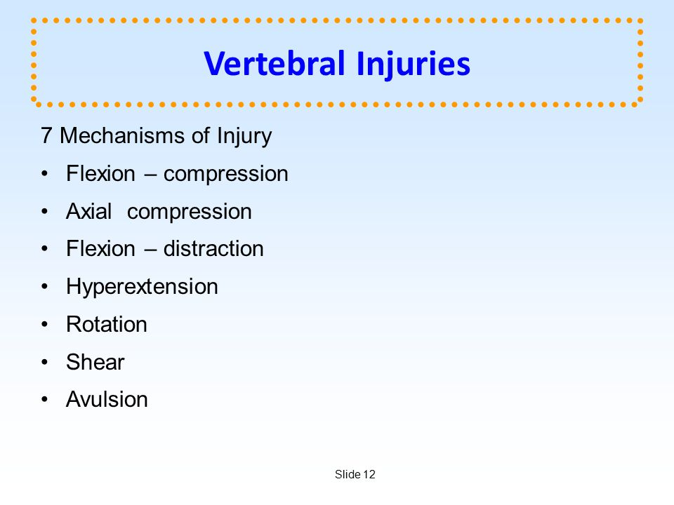 Vertebral Injuries 7 Mechanisms of Injury Flexion – compression