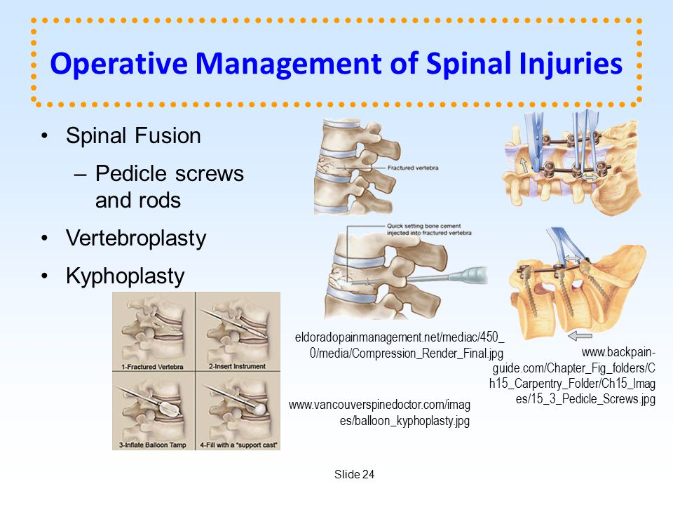 Operative Management of Spinal Injuries