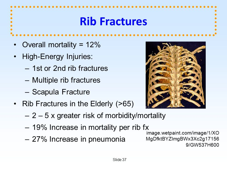 Rib Fractures Overall mortality = 12% High-Energy Injuries: