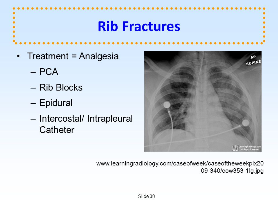 Rib Fractures Treatment = Analgesia PCA Rib Blocks Epidural
