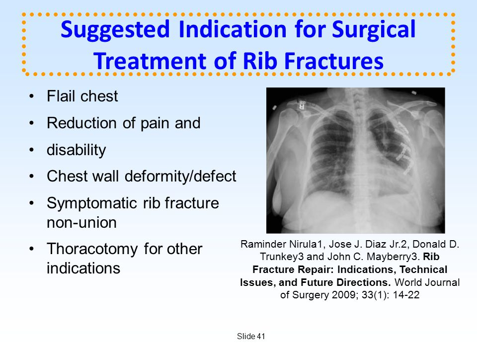 Suggested Indication for Surgical Treatment of Rib Fractures
