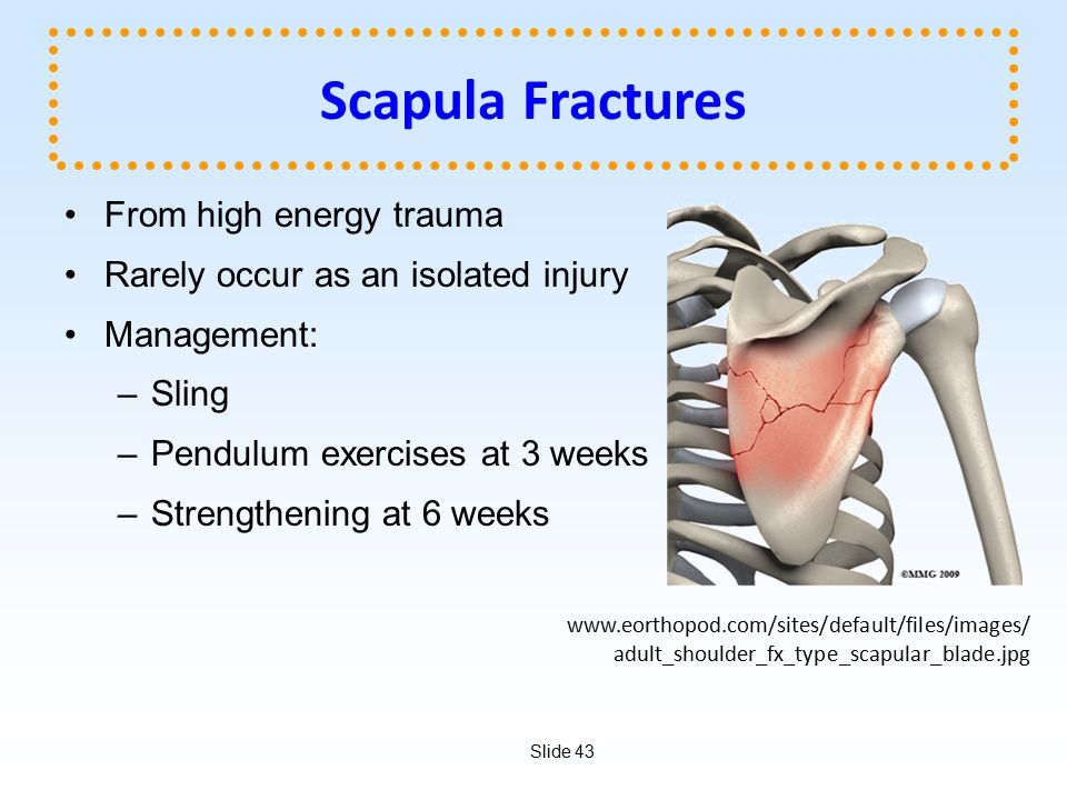 Scapula Fractures From high energy trauma