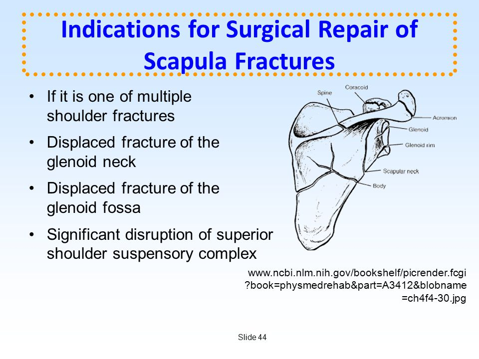 Indications for Surgical Repair of Scapula Fractures