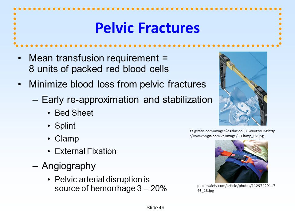 Pelvic Fractures Mean transfusion requirement = 8 units of packed red blood cells. Minimize blood loss from pelvic fractures.