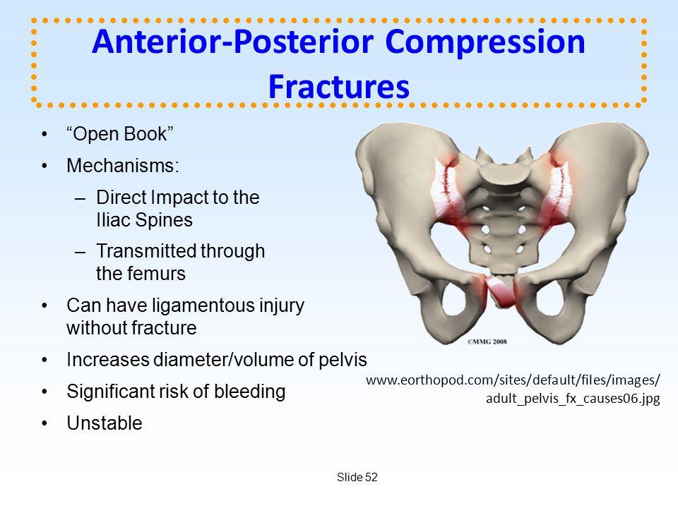 Anterior-Posterior Compression Fractures
