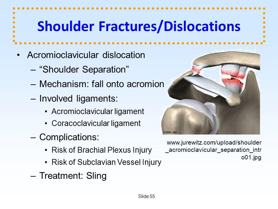 Shoulder Fractures/Dislocations