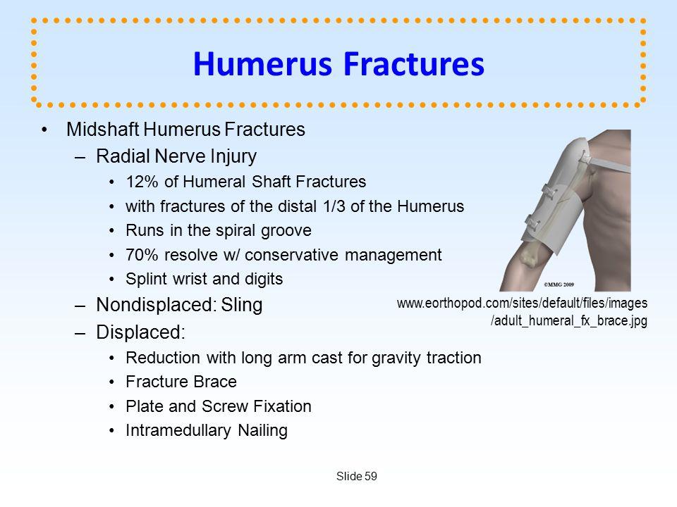 Humerus Fractures Midshaft Humerus Fractures Radial Nerve Injury