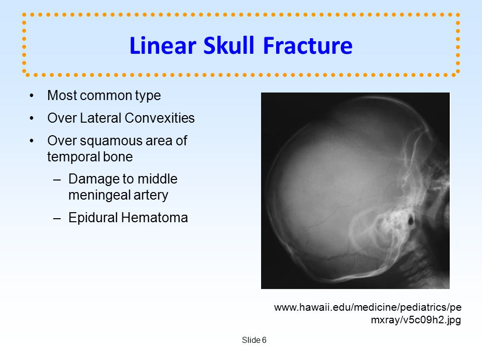 Linear Skull Fracture Most common type Over Lateral Convexities