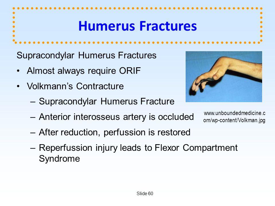 Humerus Fractures Supracondylar Humerus Fractures