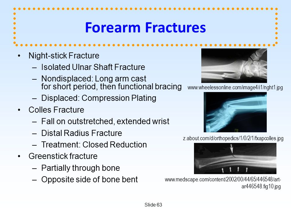 Forearm Fractures Night-stick Fracture Isolated Ulnar Shaft Fracture