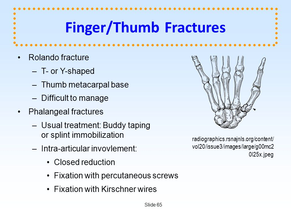Finger/Thumb Fractures