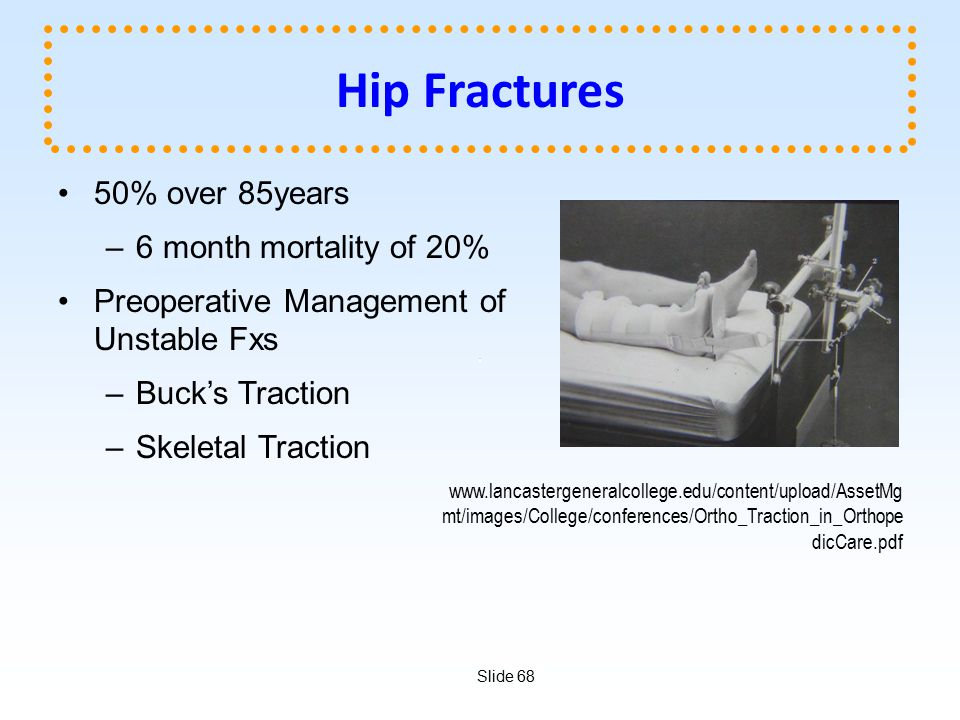 Hip Fractures 50% over 85years 6 month mortality of 20%
