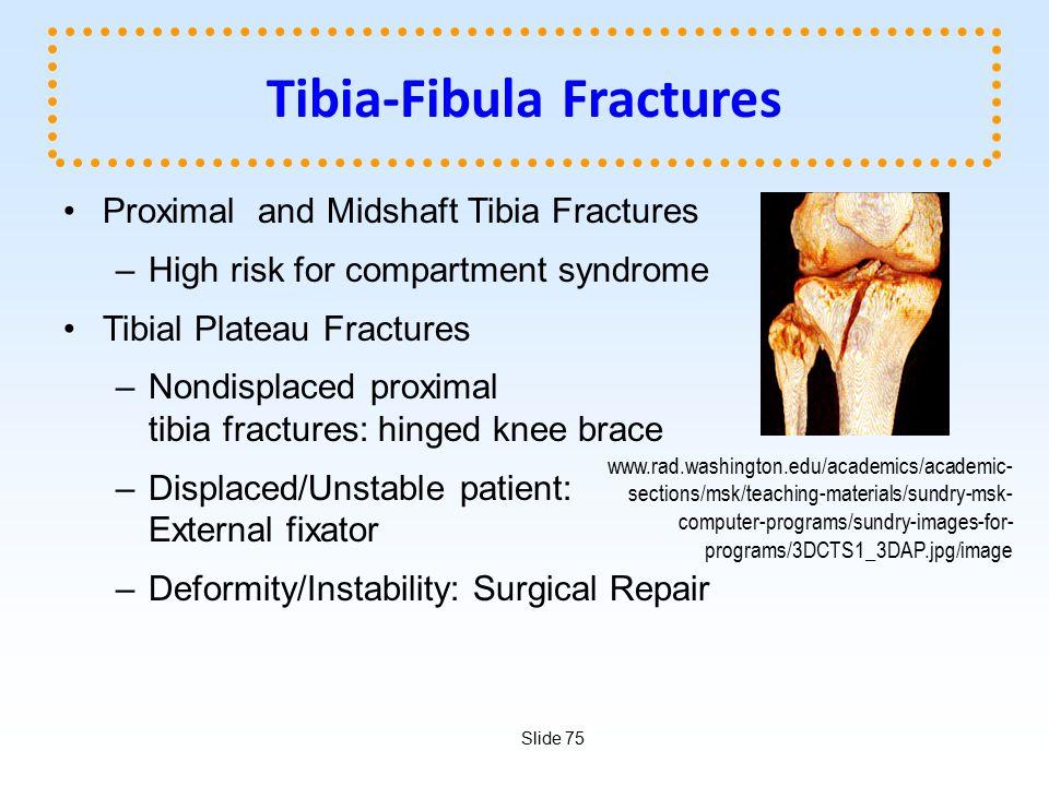 Tibia-Fibula Fractures
