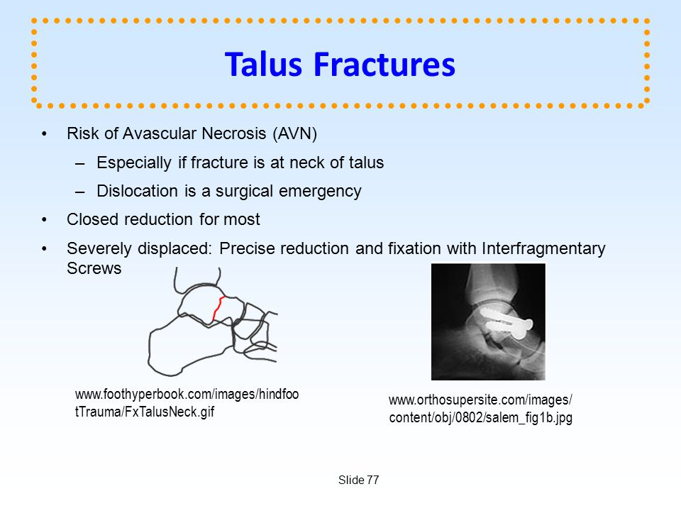Talus Fractures Risk of Avascular Necrosis (AVN)