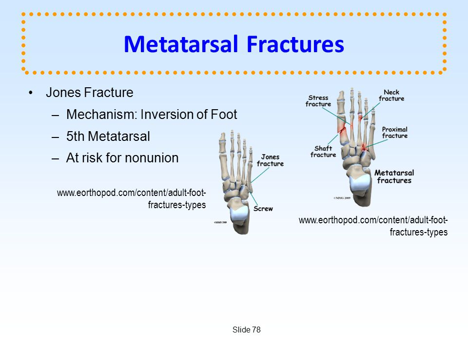 Metatarsal Fractures Jones Fracture Mechanism: Inversion of Foot