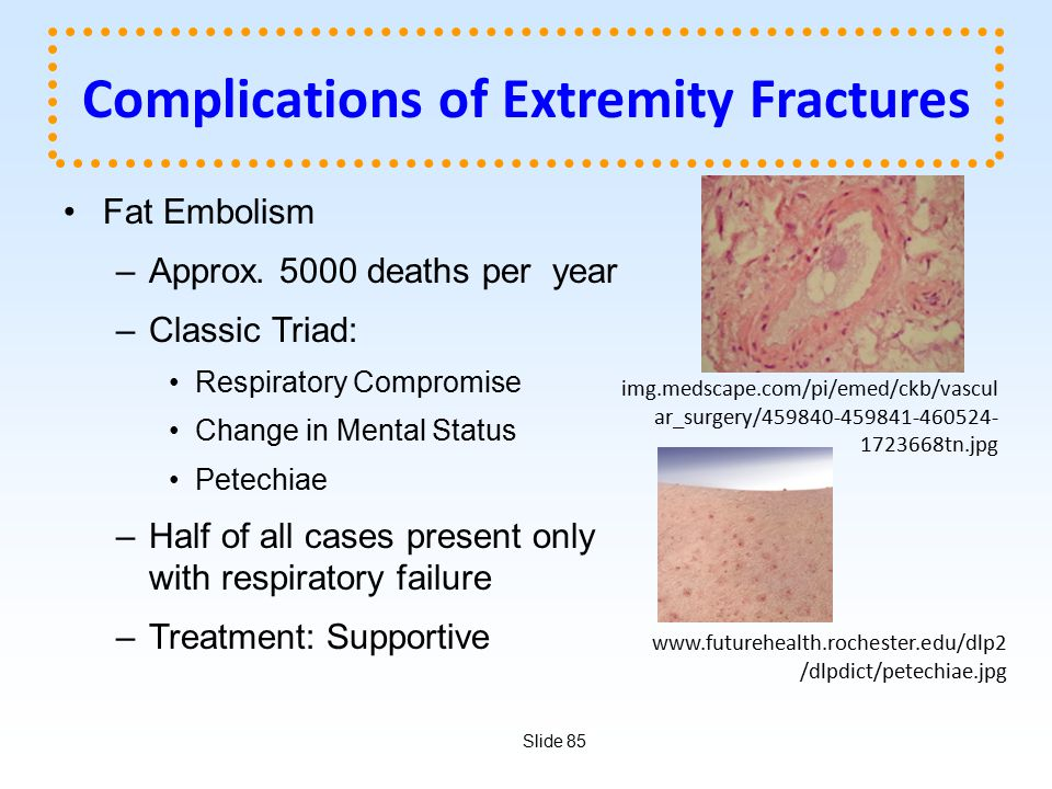 Complications of Extremity Fractures