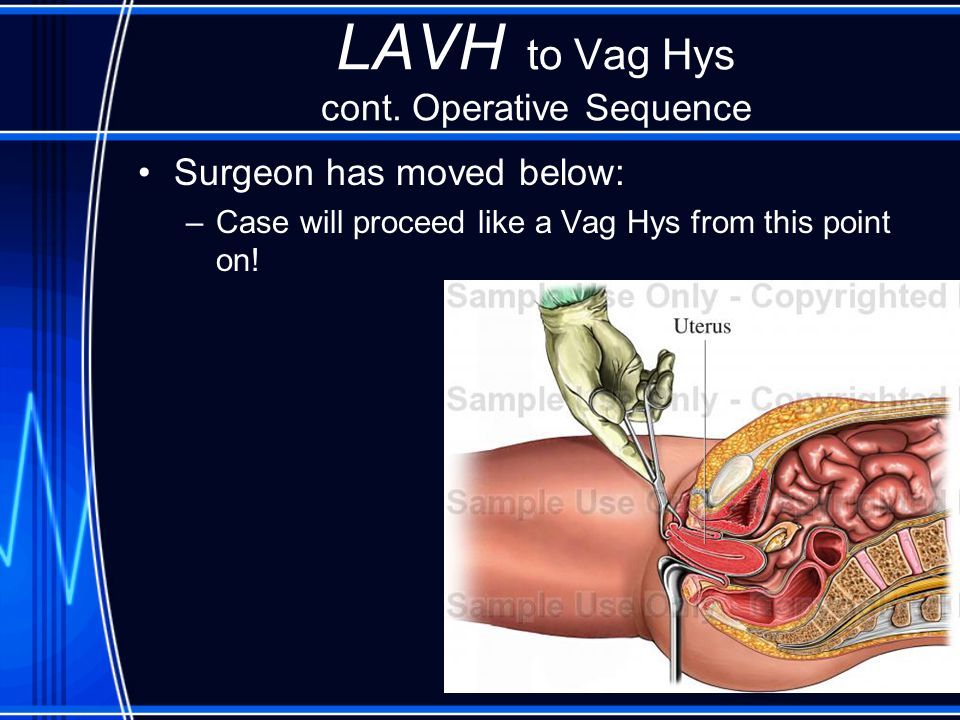LAVH to Vag Hys cont. Operative Sequence