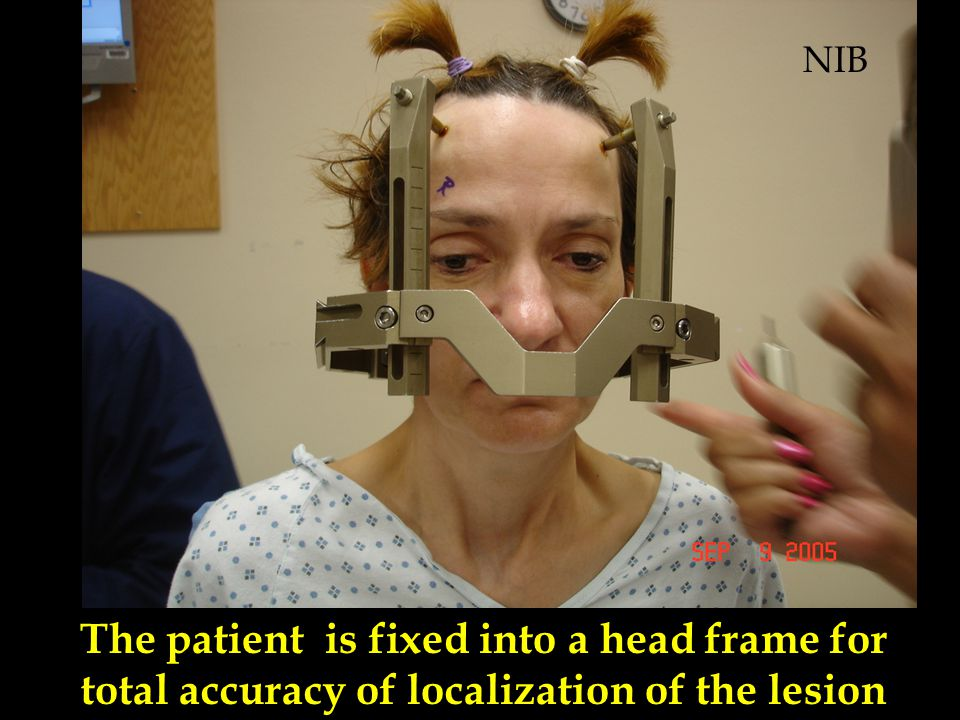 NIB The patient is fixed into a head frame for total accuracy of localization of the lesion