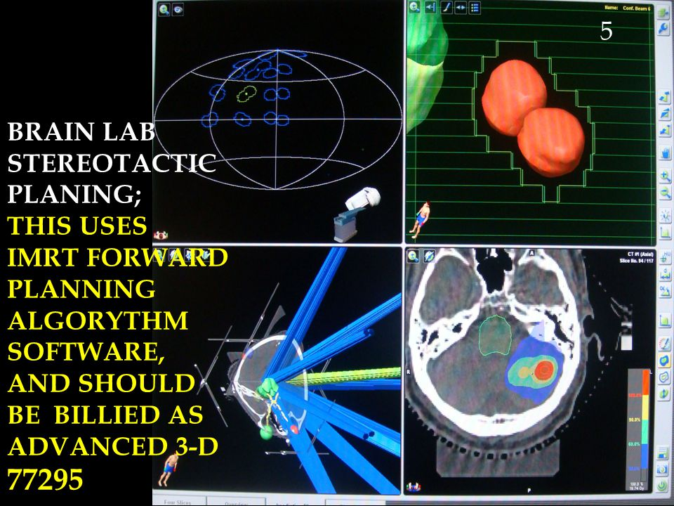 77295 5 BRAIN LAB STEREOTACTIC PLANING; THIS USES
