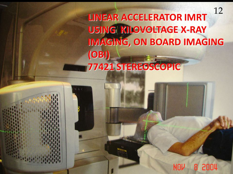 12 LINEAR ACCELERATOR IMRT USING KILOVOLTAGE X-RAY IMAGING, ON BOARD IMAGING (OBI) 77421 STEREOSCOPIC.