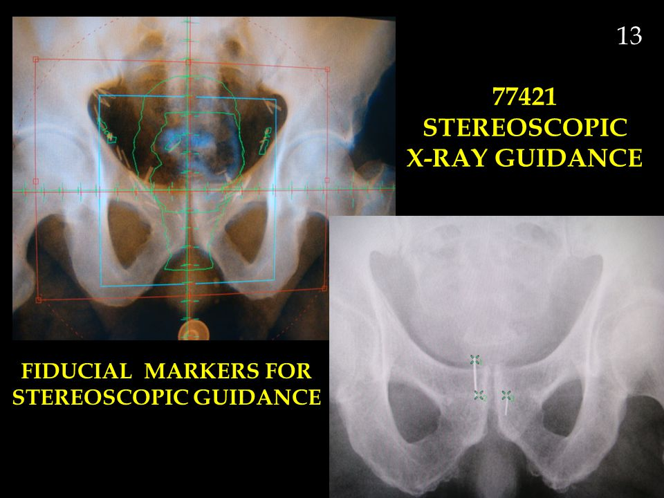 77421 STEREOSCOPIC X-RAY GUIDANCE STEREOSCOPIC GUIDANCE