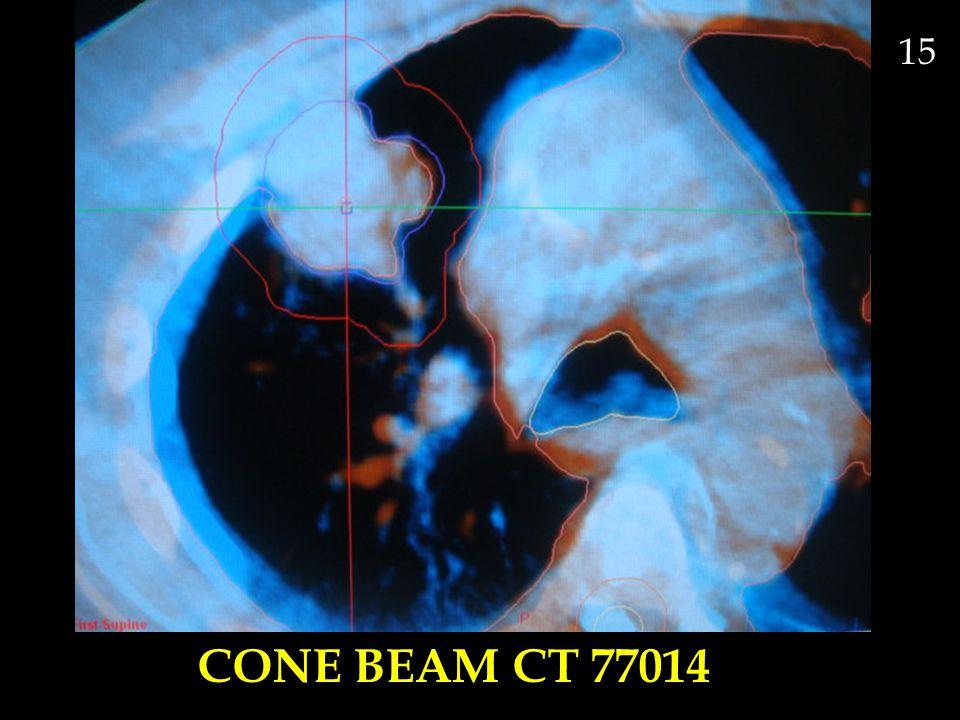 15 CONE BEAM CT 77014