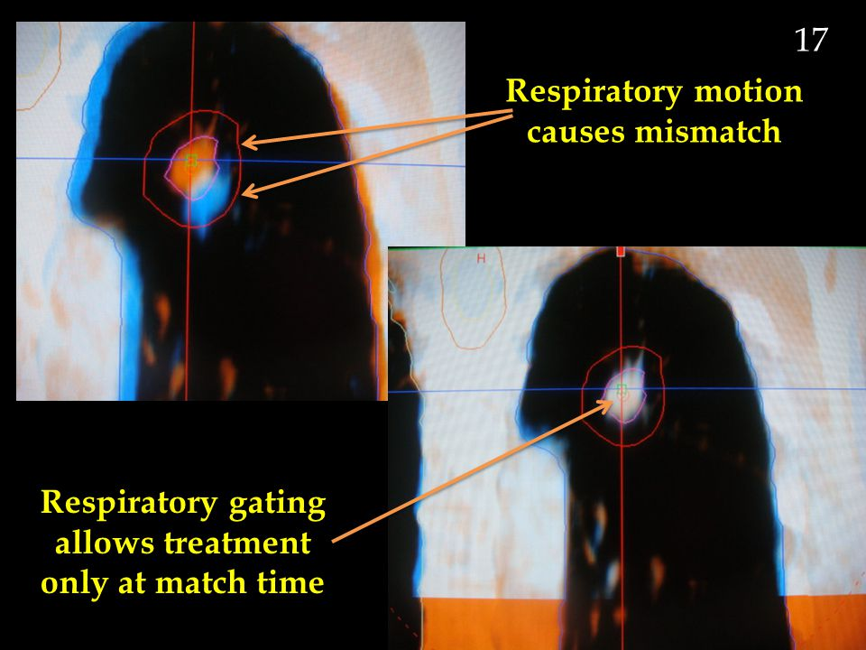 Respiratory motion causes mismatch