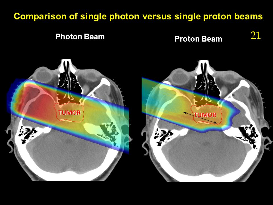 Comparison of single photon versus single proton beams