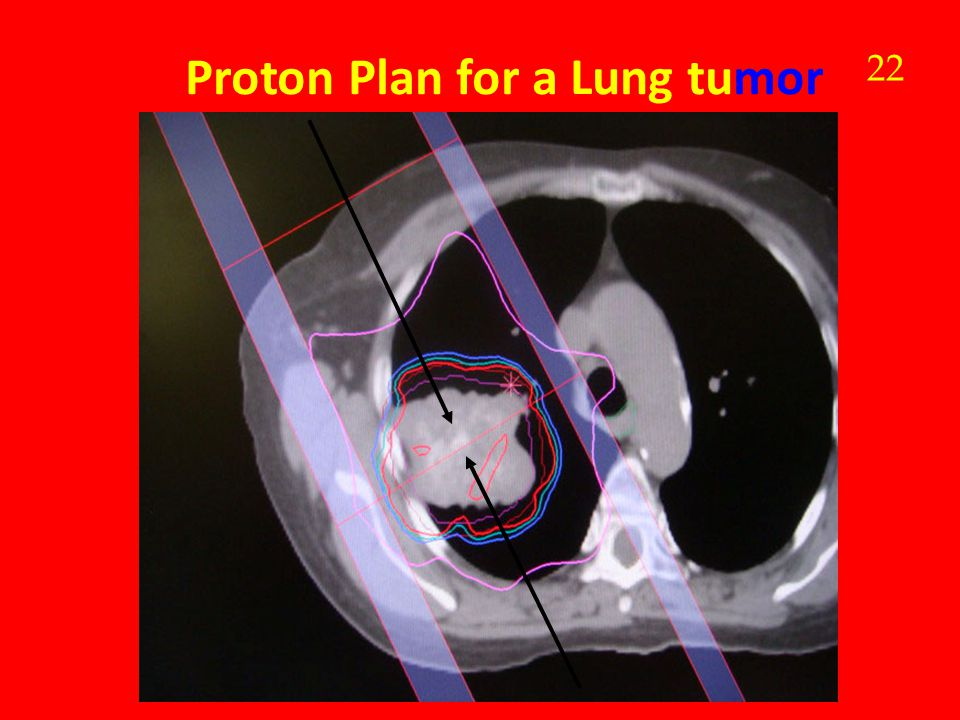 Proton Plan for a Lung tumor