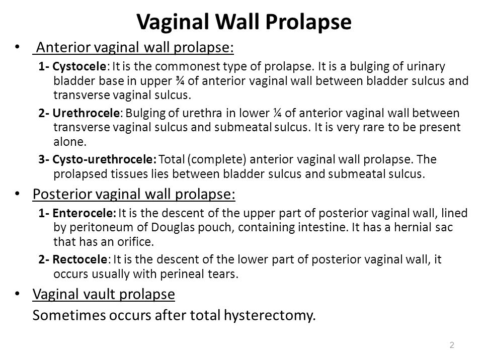 Vaginal Wall Prolapse Anterior vaginal wall prolapse: