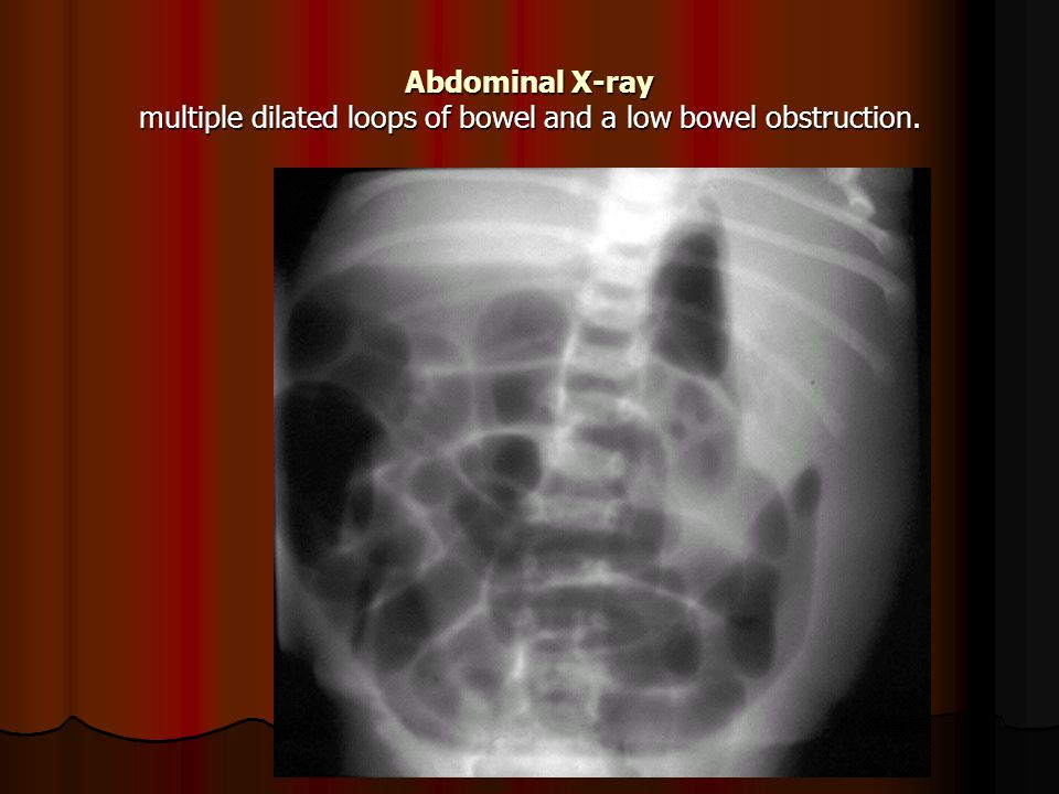 Abdominal X-ray multiple dilated loops of bowel and a low bowel obstruction.