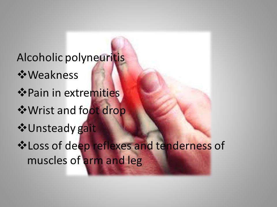 Alcoholic polyneuritis