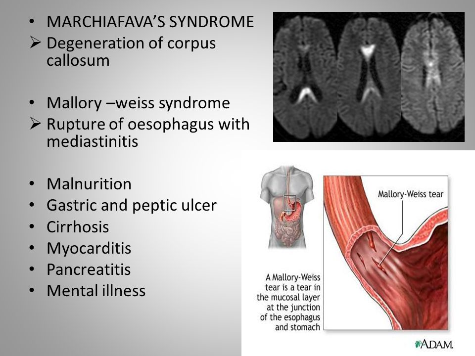 MARCHIAFAVA'S SYNDROME