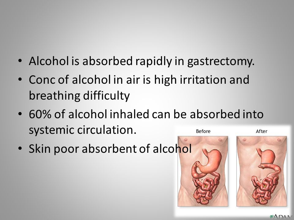 Alcohol is absorbed rapidly in gastrectomy.