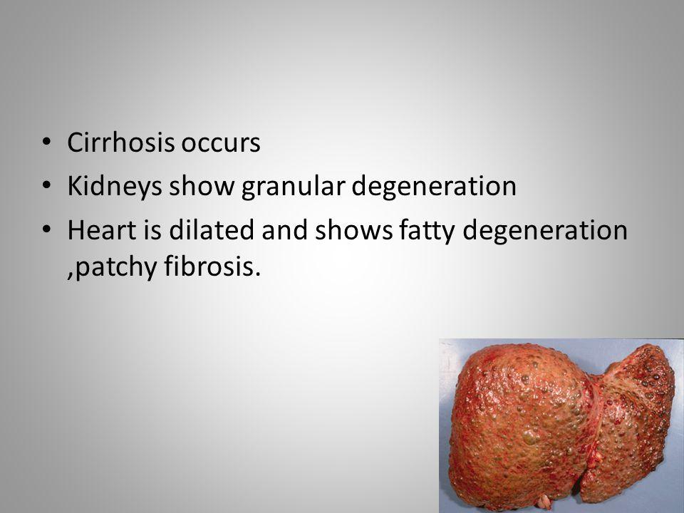 Cirrhosis occurs Kidneys show granular degeneration.