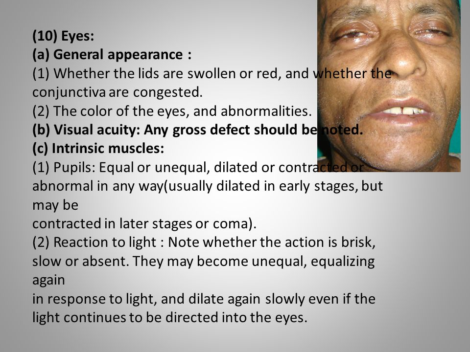 (10) Eyes: (a) General appearance : (1) Whether the lids are swollen or red, and whether the conjunctiva are congested.