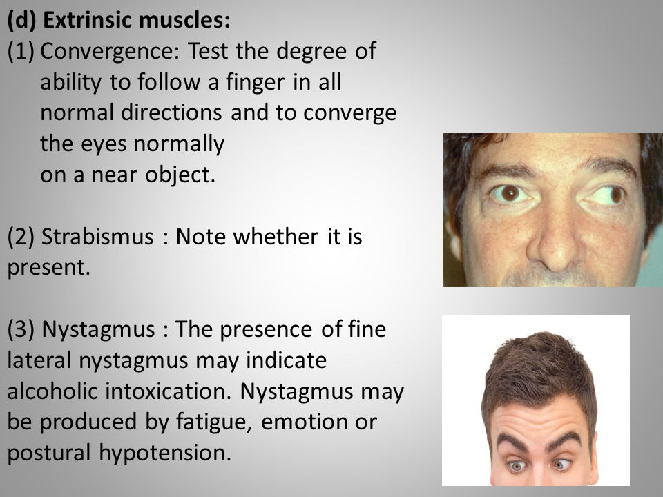 (d) Extrinsic muscles: