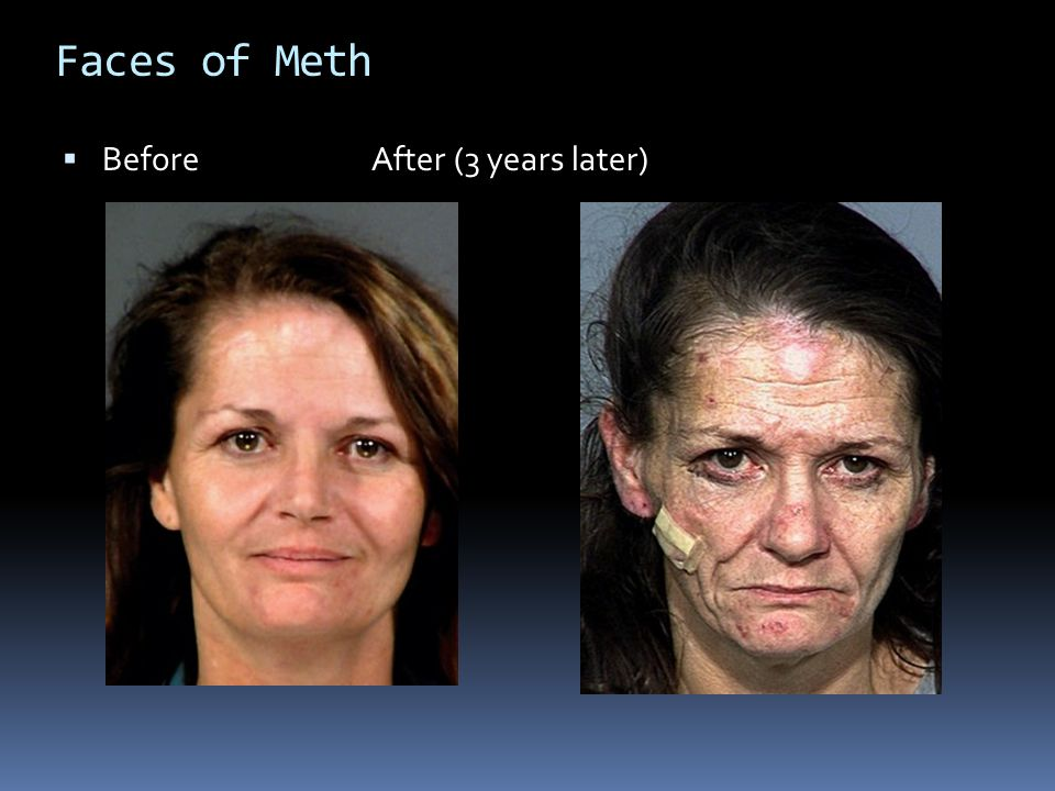 Faces of Meth Before After (3 years later)