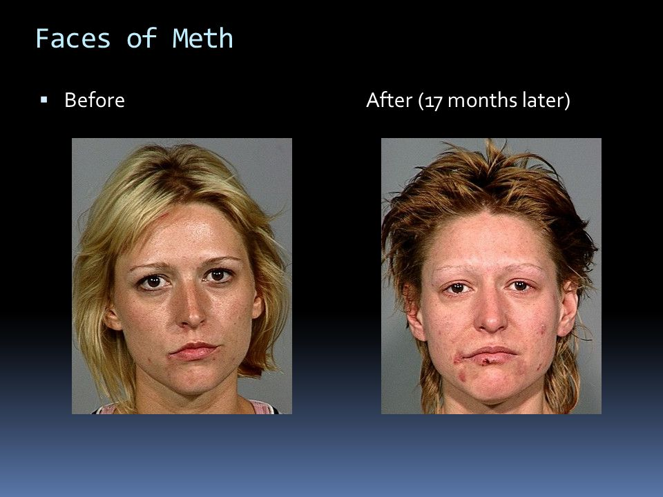 Faces of Meth Before After (17 months later)