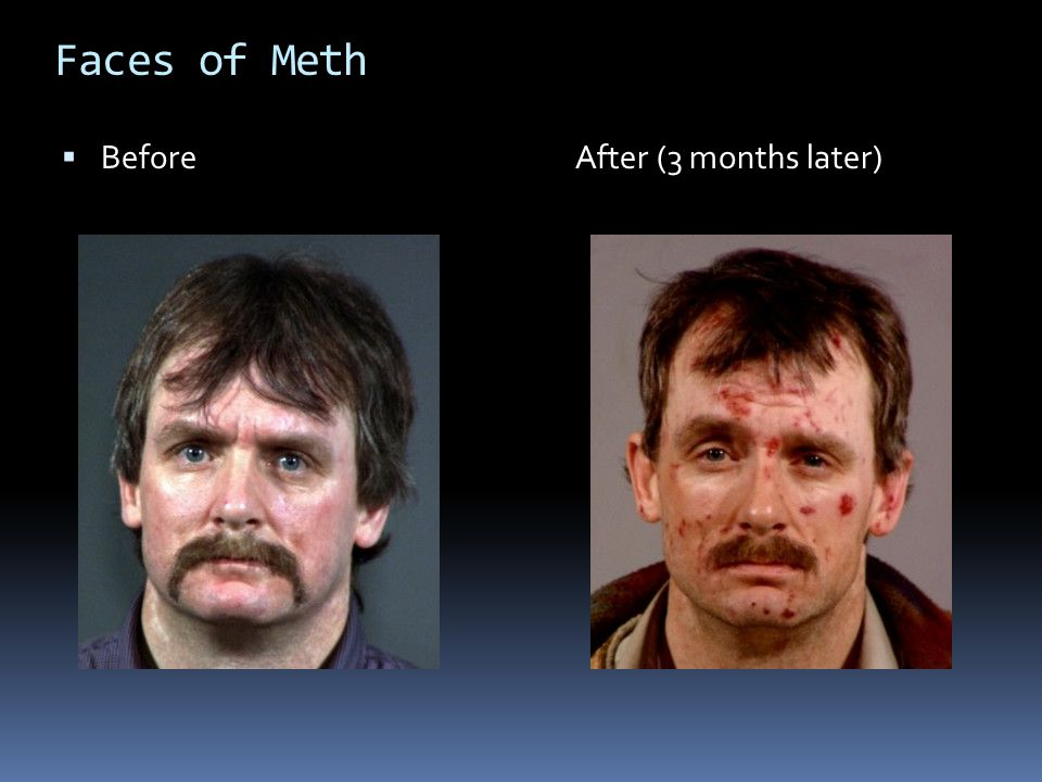 Faces of Meth Before After (3 months later)