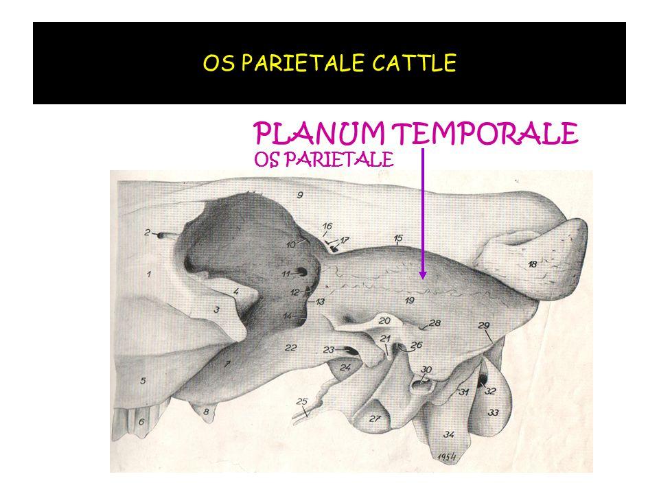 PLANUM TEMPORALE OS PARIETALE