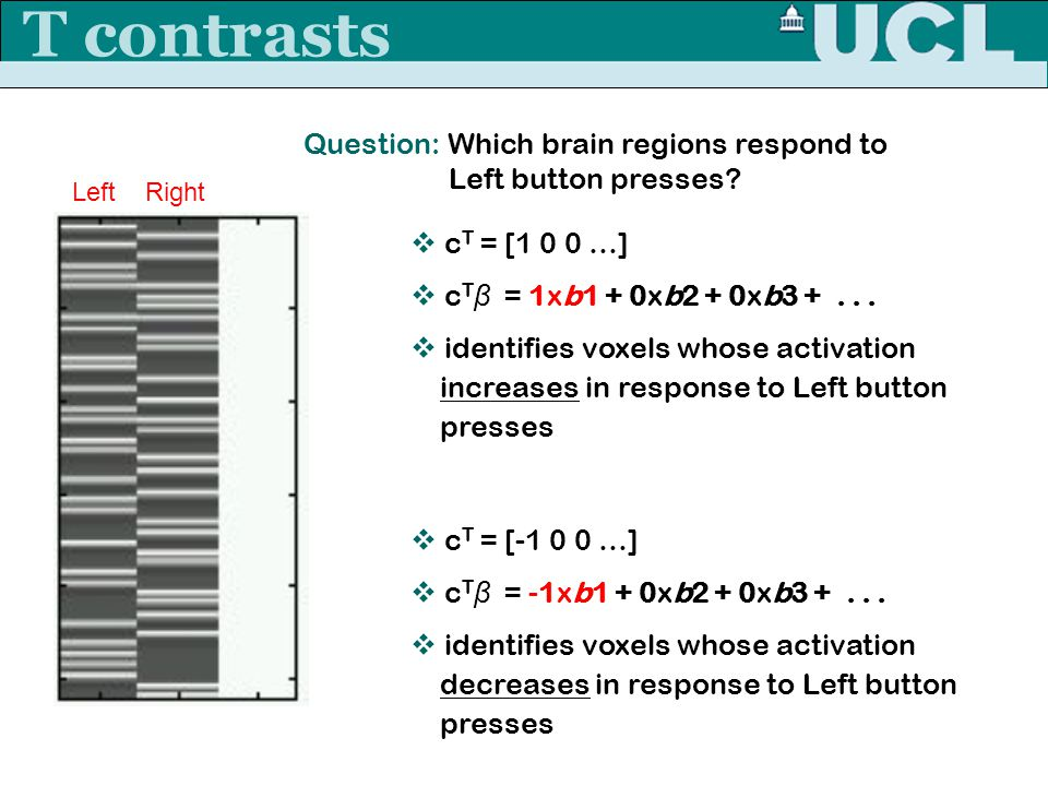 T contrasts Question: Which brain regions respond to