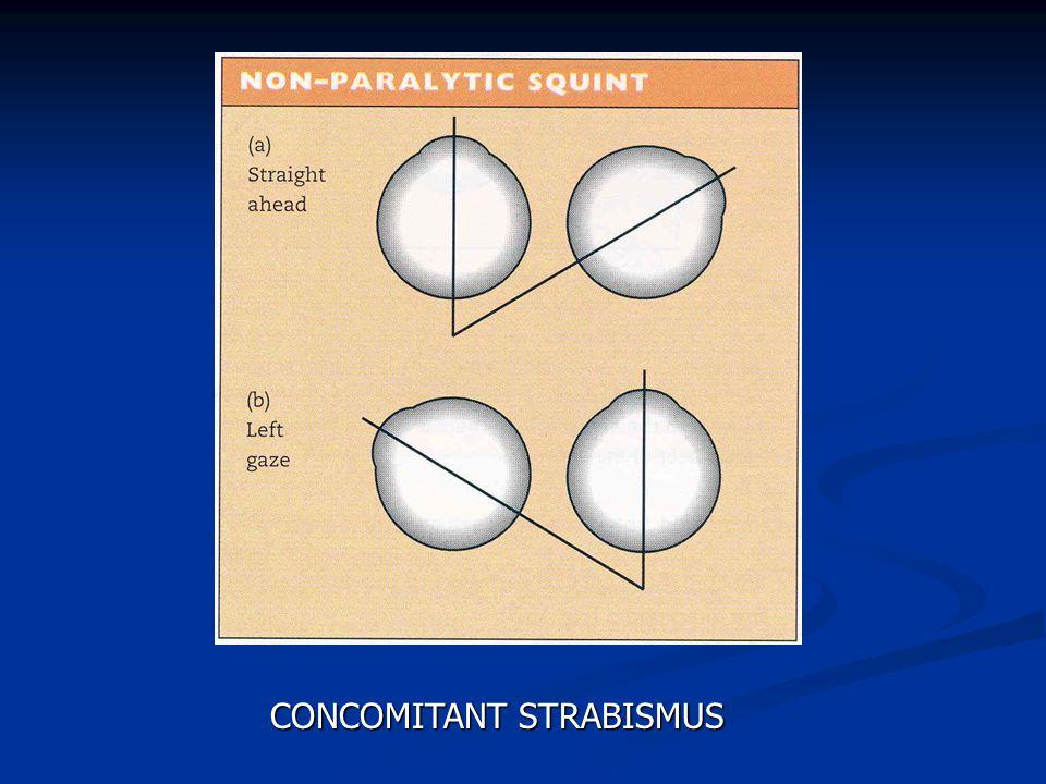 CONCOMITANT STRABISMUS