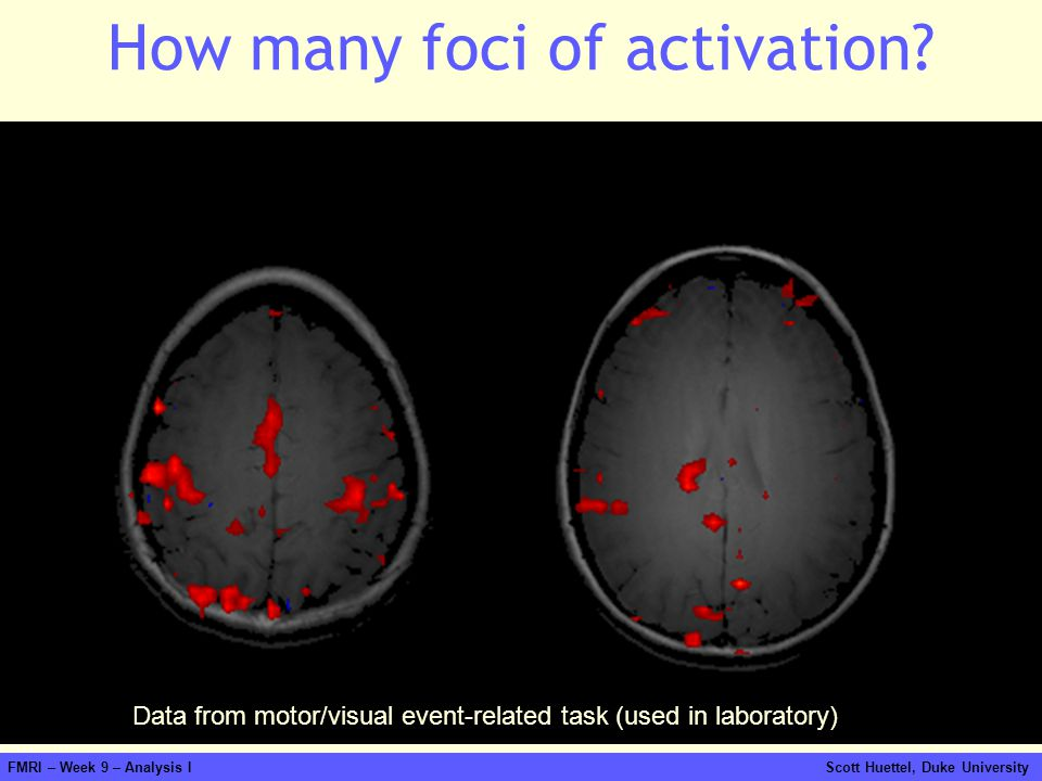 How many foci of activation