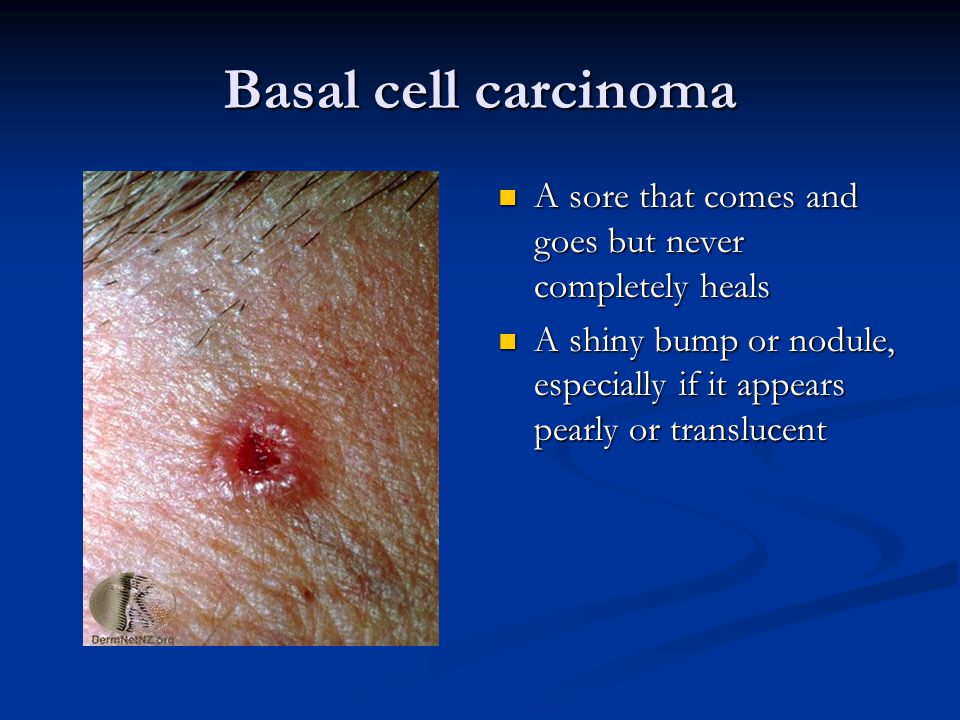 Basal cell carcinoma A sore that comes and goes but never completely heals.