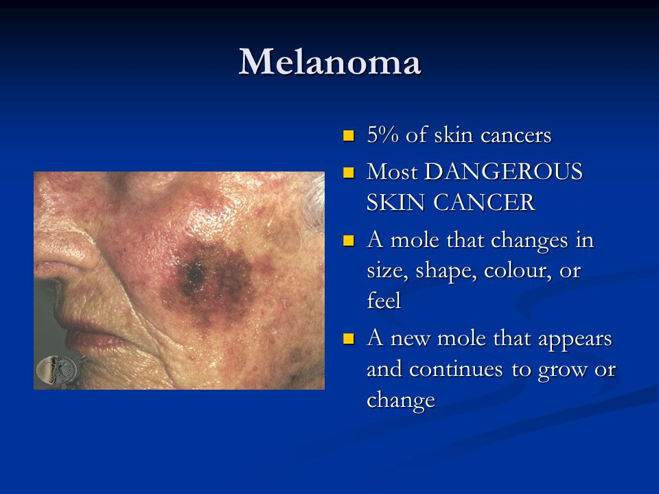 Melanoma 5% of skin cancers Most DANGEROUS SKIN CANCER