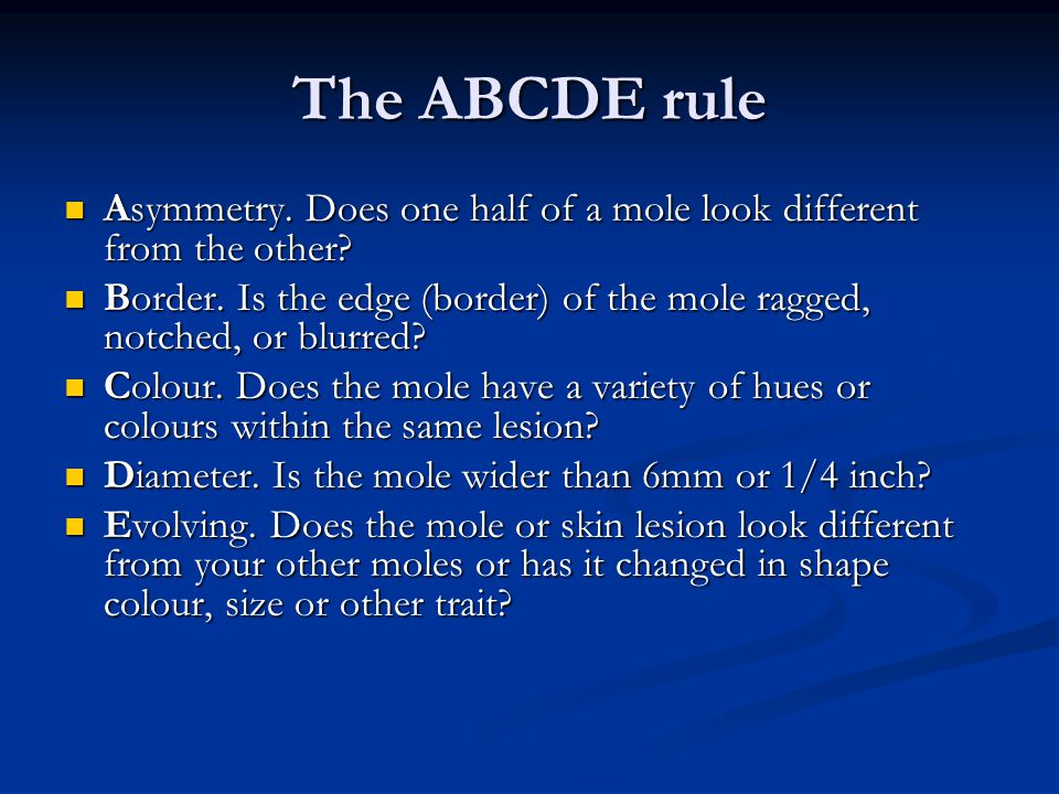 The ABCDE rule Asymmetry. Does one half of a mole look different from the other