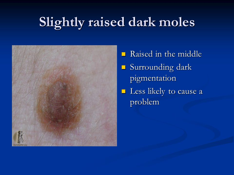 Slightly raised dark moles