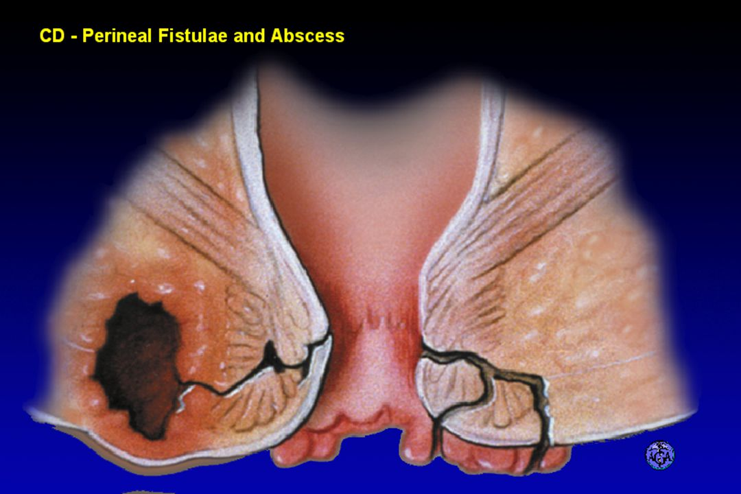 PERIANAL FISTULAE AND ABSCESS