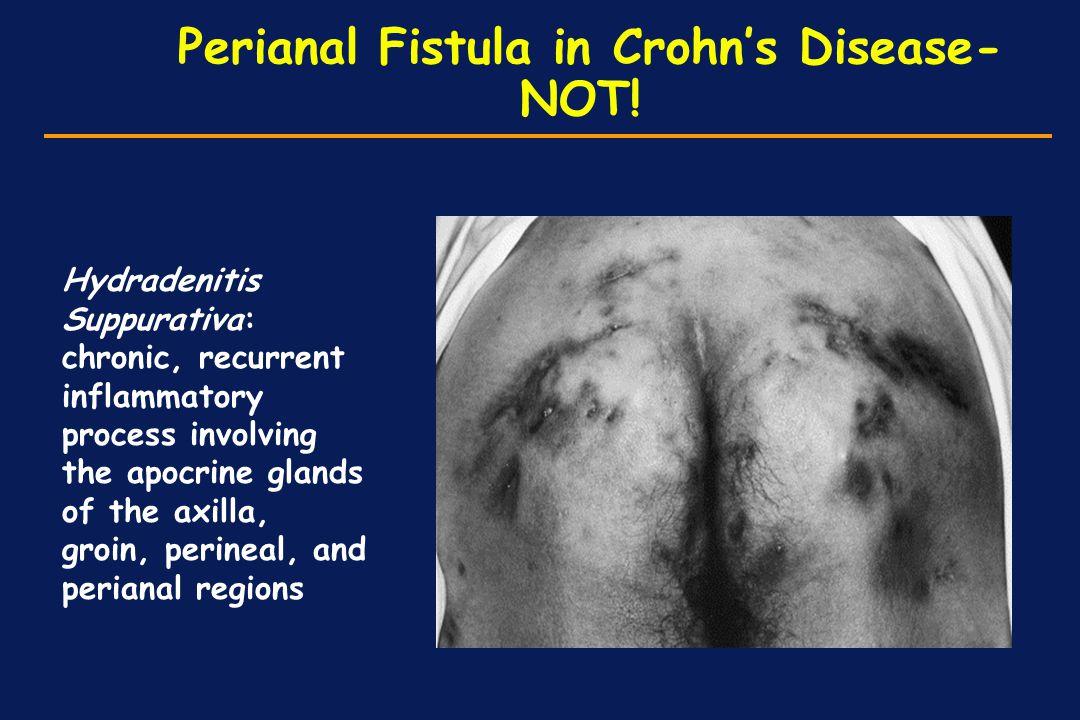Perianal Fistula in Crohn's Disease- NOT!